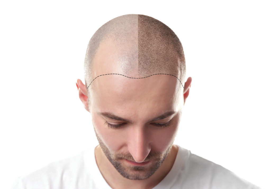 Hair loss and all the stages of the process
